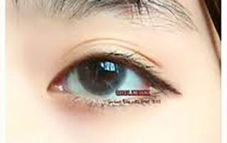 Mắt dại là gì